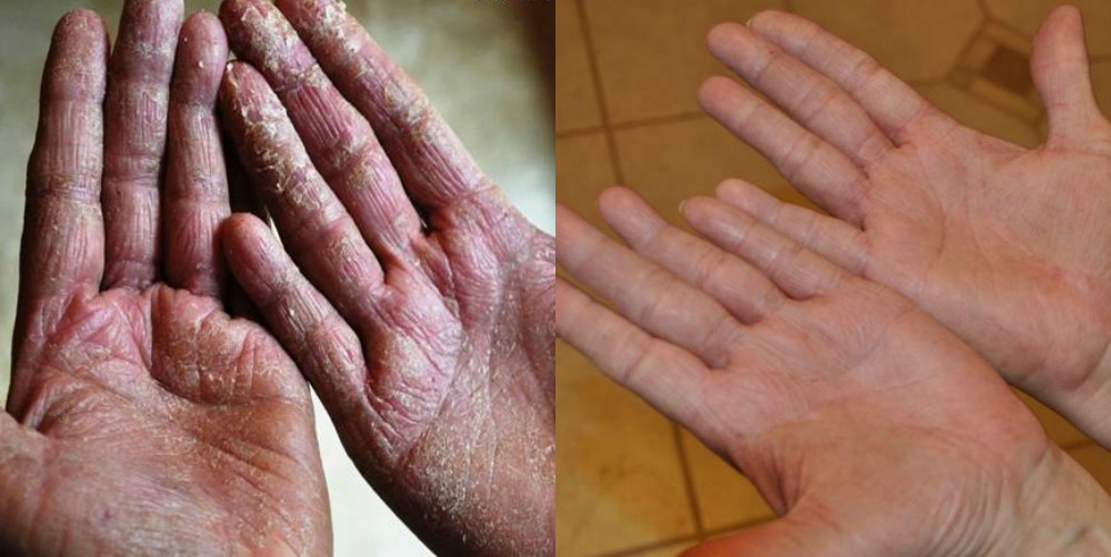 before and after photos of hand eczema treated with emu oil cream