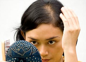 hair loss at part