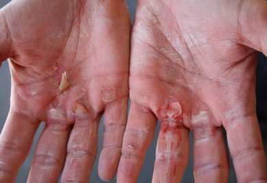 Hand calluses torn by working out