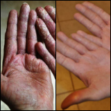 Before and after photos of eczema treated with emu oil
