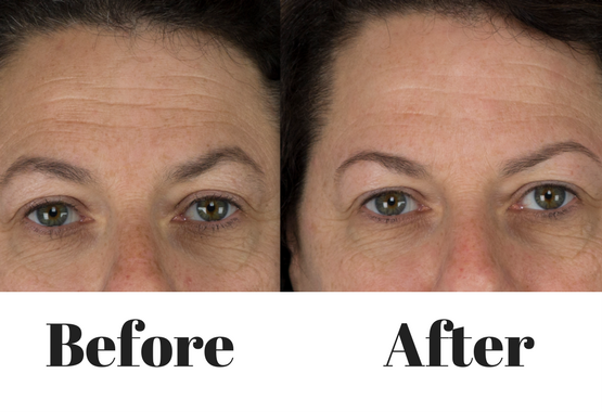 remove fine lines and wrinkles