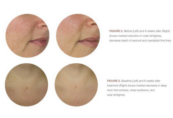 fade age spots with microdermabrasion