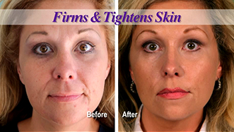 Decreased Lines and Wrinkles
