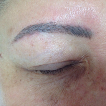 permanent-makeup-risks-and-complications