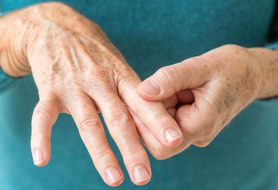 rheumatoid arthritis and inflammation