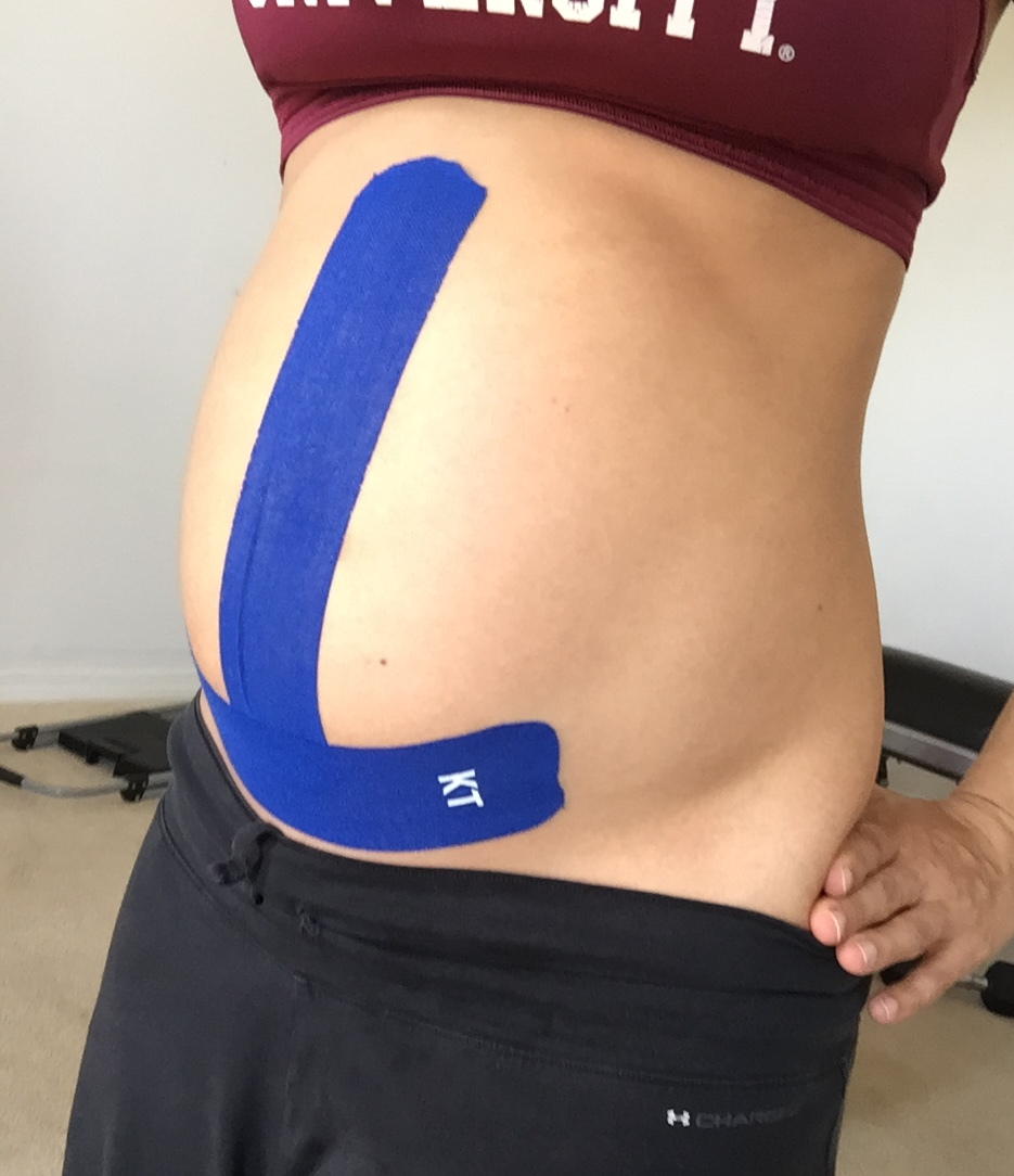 0f9ea576df4 Kinesio Taping During Pregnancy +Techniques for the Pregnant Belly ...