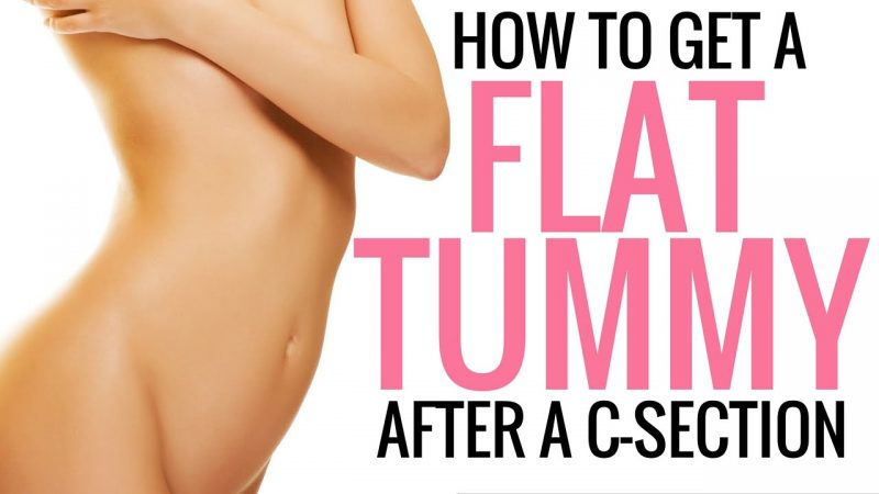 2f5cd3a8f723c 5 Exercises to Heal Your C-Section Tummy - Diary of a Fit Mommy