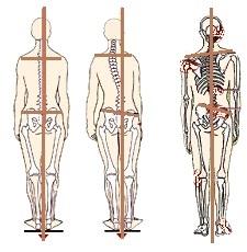 הבדל גובה רגליים.jpg