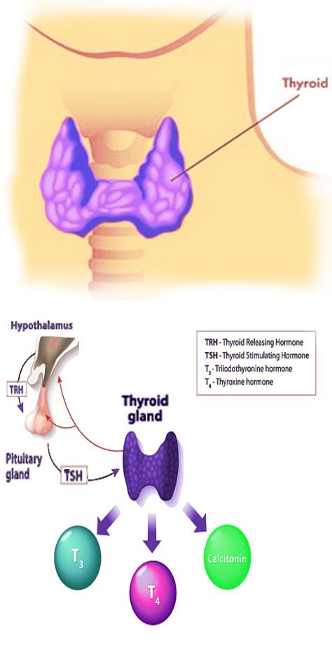 sf-neuropathy.jpg