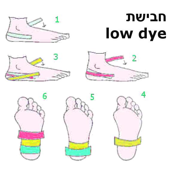 חבישתlow dye לדורבן