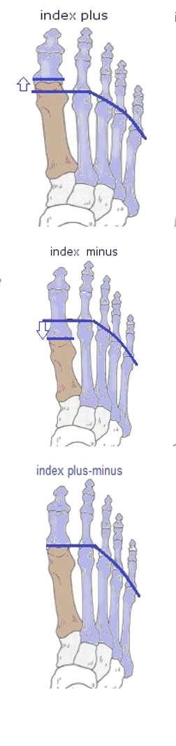 מבנה כף הרגל הקדמית כגורם לכאבים בכריות כף הרגל