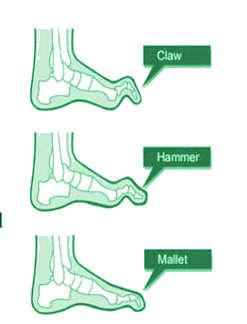 סוגי בעיות באצבעות כף הרגל, אצבע פטיש