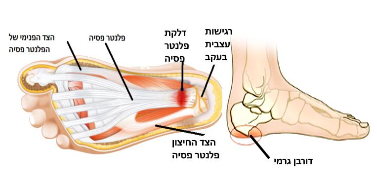מיקום שכיח של דלקות בכף הרגל