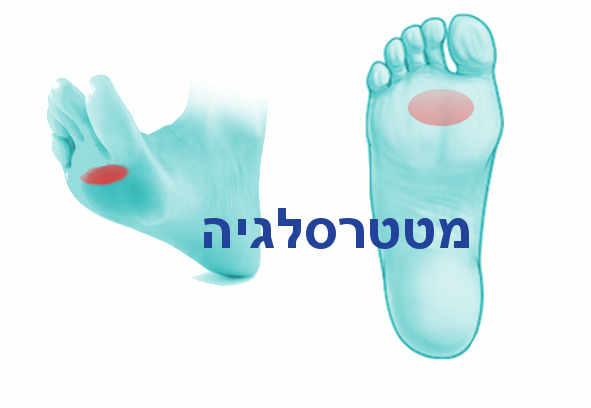 כאבים בכרית כף הרגל או בשמה הרפואי מטטרסלגיה המתארת כאבים בכף הרגל הקדמית