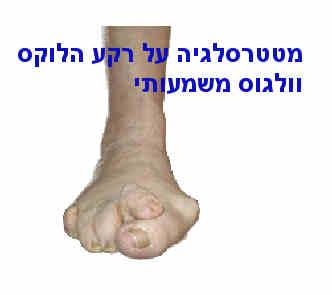 כאבים בכף הרגל מטטרסאלגיה על רקע הלוקס וולגוס.jpg