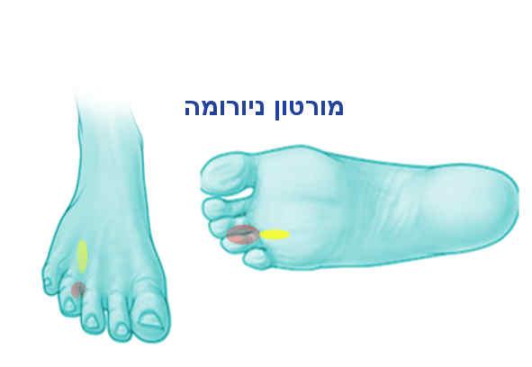 כאבים בכף הרגל מסוג מורטון ניורומה.jpg