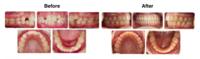 2 Phase Treatment