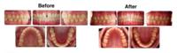 Tooth Gap (Diastema)