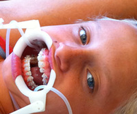 Tips for Easing Orthodontic Anxieties at School