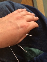 Acupuncture - Santa Barbara's Most Accessible Healing Solution