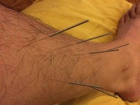 Acupuncture for stress with tension
