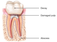 Root Canals-Endodontic Treatment Santa Barbara Dental Spa-3