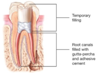 Root Canals-Endodontic Treatment Santa Barbara Dental Spa-4
