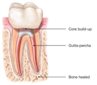 Root Canals-Endodontic Treatment Santa Barbara Dental Spa-5