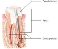 Root Canals-Endodontic Treatment Santa Barbara Dental Spa-6