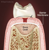 Oral Surgery Procedures Santa Barbara Dental Spa-3