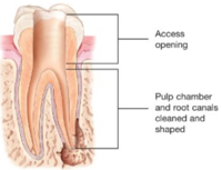 Root Canal Emergency Dental Services