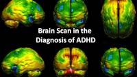 ADHD, Part II