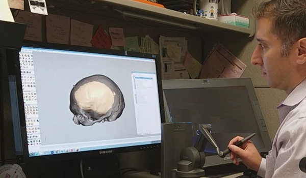 Peter Liacouras, Ph.D., demonstrates computer software that allows him to manipulate and cut a custom cranial plate design. This device supplies haptic feedback, allowing him to feel any modifications made to the design. Custom cranial plates and other maxillofacial devices are routinely designed using this and other digital technology.