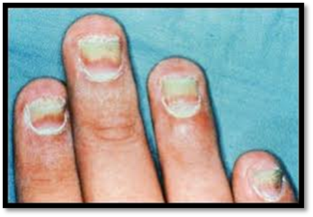 Preparations For Fungal Nail Treatment