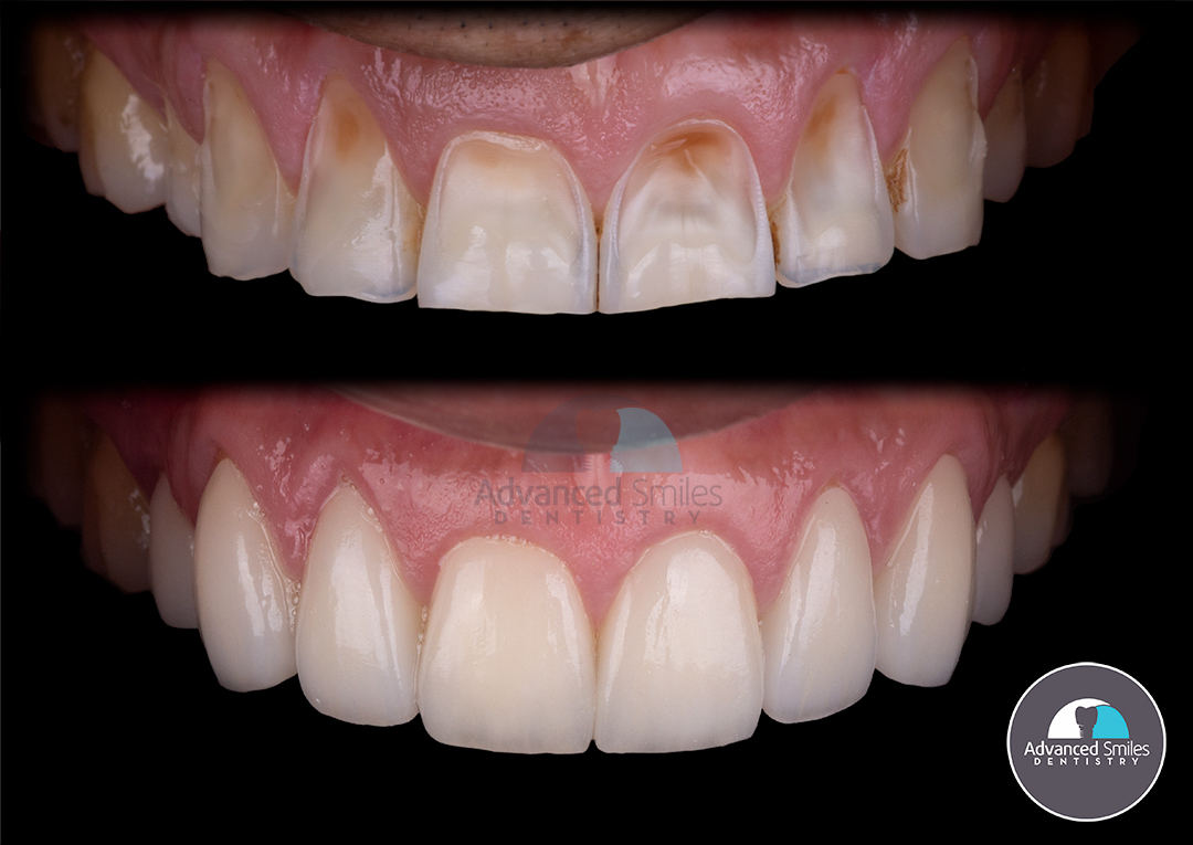 Check this out veneers before and after what are veneers