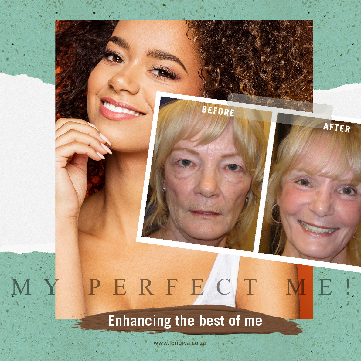Improve your negativeswith nonsurgical aesthetic