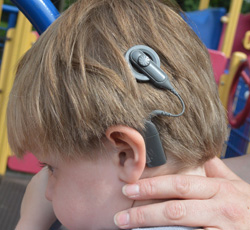 A cochlear implant is an electronic device that greatly improves hearing. Static electricity from plastic slides can cause the devices to short circuit