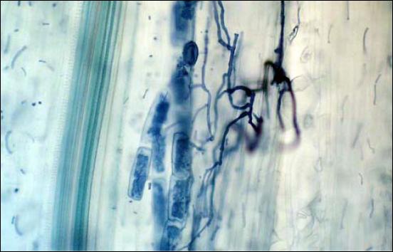 how to add mycorrhizal fungi to soil