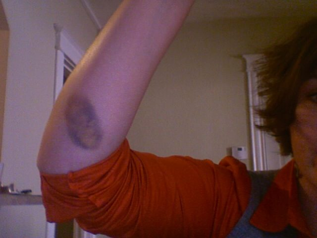 Easy bruising: Why does it happen? - South Florida Reporter