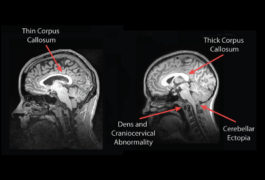 The thickness of the corpus callosum tends to differ in people with a deletion (right) or duplication (left) of the chromosomal region 16p11.2.