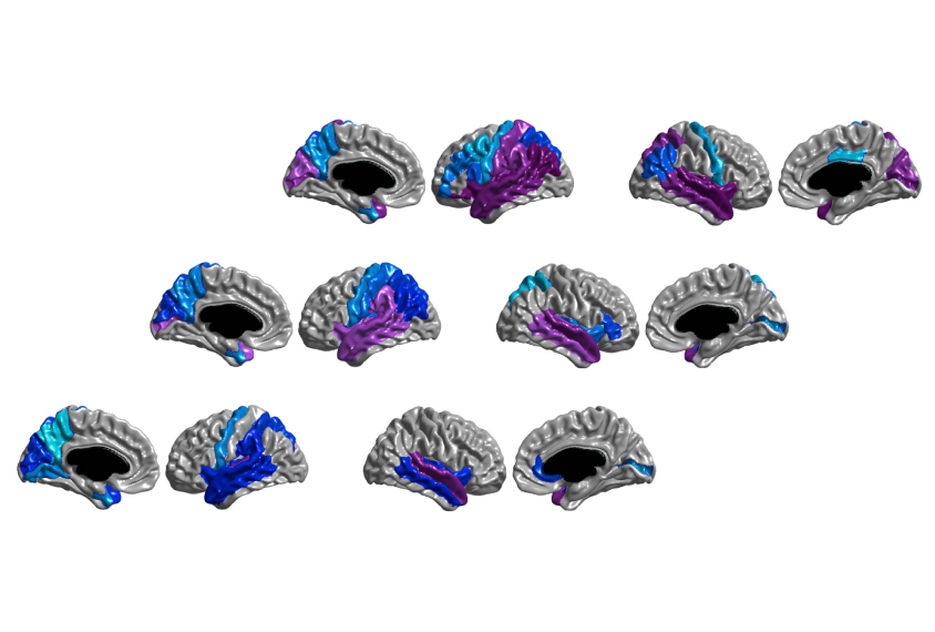 Structural anomalies (purple and blue) in the brains of babies with autism at 6 months (bottom row) become more widespread by 12 months (top row).