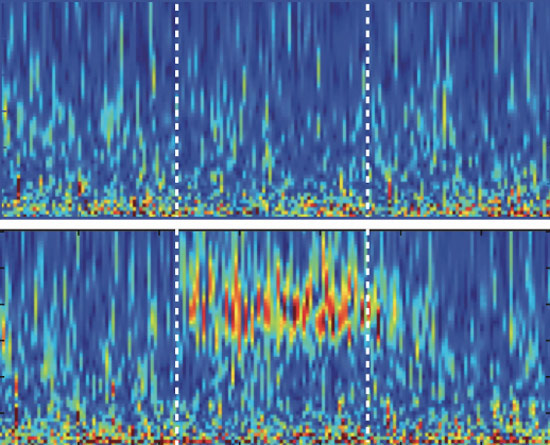 Brain bursts: Neurons engineered to respond to light (bottom) produce high-frequency brain waves that have been linked to autism.