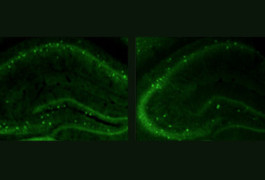 High fidelity: Compared with controls (left), mice lacking CNTNAP2 (right) have fewer interneurons, which dampen electrical signaling in the brain.