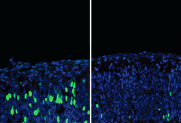 Lost in translation: Lowering the levels of a complex that stalls protein synthesis prompts stems cells (green, left panel) to mature into neurons (blue, right panel) in the embryonic mouse brain.