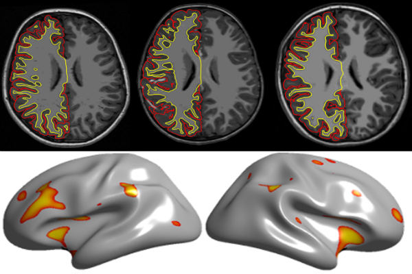 In Autism Brain Shows Unusual Thinning >> Pooling Autism Brain Imaging Data Can Distort Results