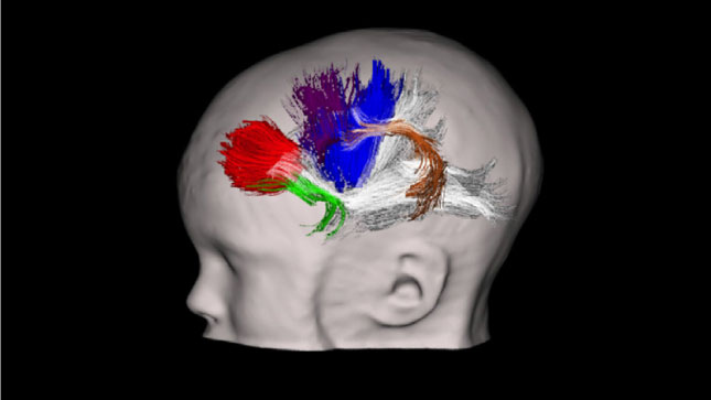 Autism Brain Circuit That Controls >> Extra Thick Connections Mark Brains Of Toddlers With Autism