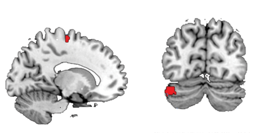 Sex differences in brain and cognition