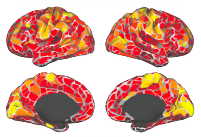 adult brain The