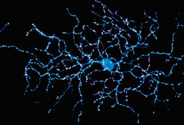 Branching out:  A retinal neuron (blue) connects with many neighboring neurons, with proteins at these connections glowing magenta and green.