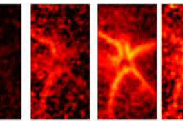 Fast fluorescence:  A neuron in the brain of an awake mouse emits a glow as it fires.
